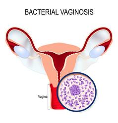 Uterus and close-up of gardnerella vaginalis vector