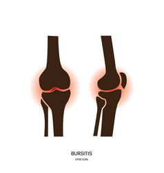 Bursitis and knee joint icon vector