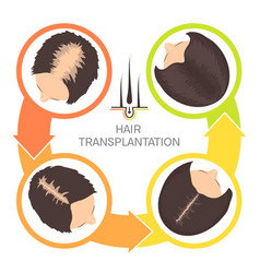 Hair transplantation for women-4 step infographics vector