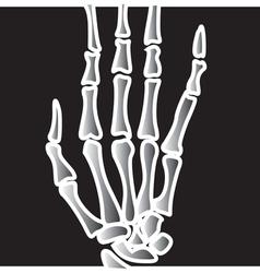 Xray Finger bones vector