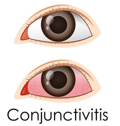 conjunctivitis in human eyes vector image