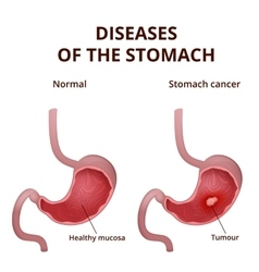 Anatomy of the human stomach vector image