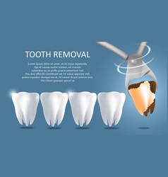 Tooth removal medical poster banner vector