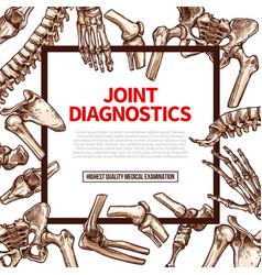 poster for joint medical diagnostics vector image