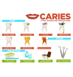 Caries types stages and prevention poster with vector