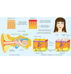 Eczema skin vector