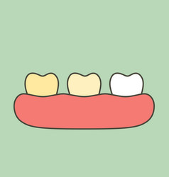 Yellow to white tooth - teeth whitening vector