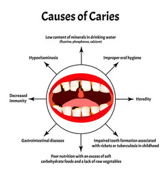 Causes caries smell from mouth halitosis vector