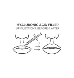 Hyaluronic acid filler lip injections before and vector