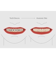 Teeth braces vector image vector image