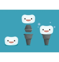 Tooth implant 3 step of dental vector