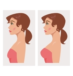 Chest before and after plastic vector