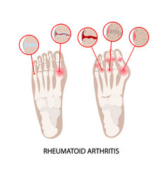 Rheumatoid disease leg arthritis medicine educatio vector