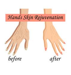 Hand skin rejuvenation vector