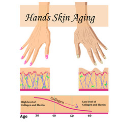 Hands skin aging with a chart vector