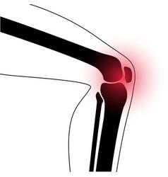 Arthritis in knee joint vector