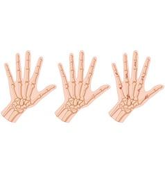 Human hands with bone fracture vector