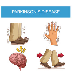 Parkinsons disease infographic vector