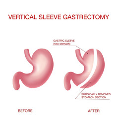 Vertical sleeve gastrectomy weight loss surgery vector
