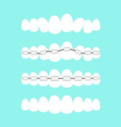 set of teeth dental vector image