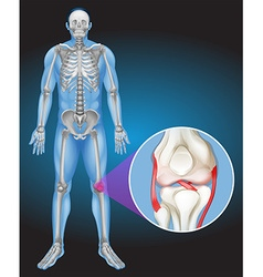 Human body and pain in knee vector image vector image