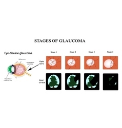 Glaucoma The structure of the eye The field of vector image