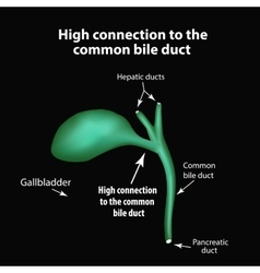 High connection to the common bile duct Pathology vector