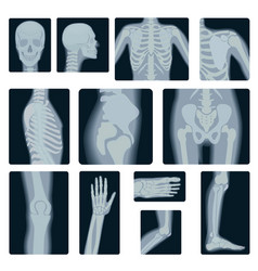 Extreme quality realistic collage set of vector