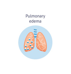 Pulmonary edema a lung disease medicine diagram vector