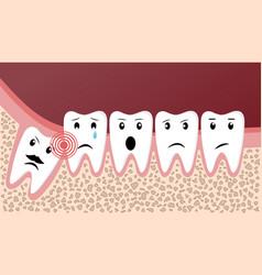 Wisdom teeth dental problems funny concept vector