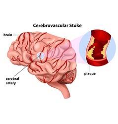 Cerebrovascular Stroke vector