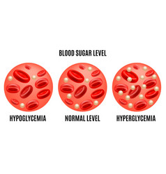 Realistic detailed 3d glucose blood level ad vector