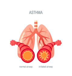 Asthma disease icon in flat style vector