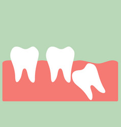 wisdom tooth vector image vector image