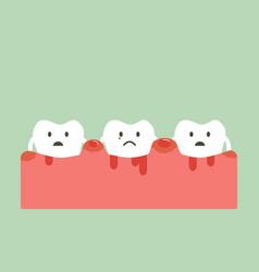 periodontitis and bleeding vector image