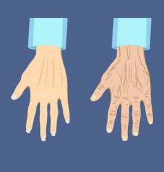 Two types of hand old and young vector