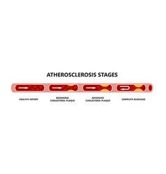 Atherosclerosis stages healthy artery beginning vector