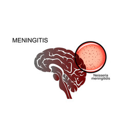 Brain causative agent of meningitis vector