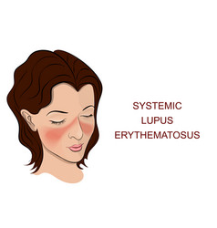 systemic lupus erythematosus vector image