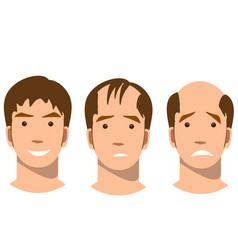 Stages of baldness vector