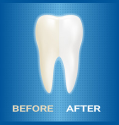 dental veneer whitening of human tooth whitening vector image