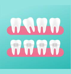 Correction teeth with orthodontic braces vector