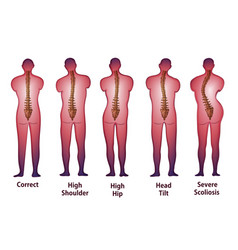 Human spine posture back view vector