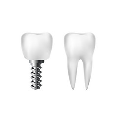 realistic healthy white tooth and implant vector image