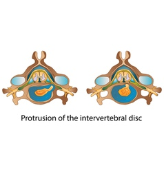 Protrusion of the intervertebral disc vector image