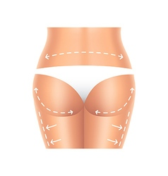 Plastic surgery buttocks and legs isolated vector