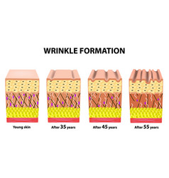 stages of wrinkles at different ages anatomical vector image