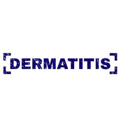 Grunge textured dermatitis stamp seal between vector