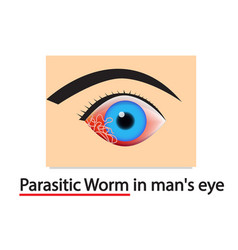 Closeup parasitic worms in humans eye art vector