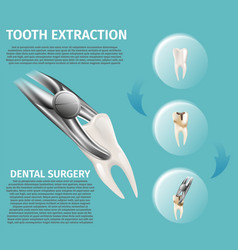 Realistic infographic dental surgery vector